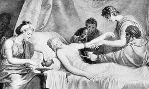 Bloodletting-scene-at-a-G-006